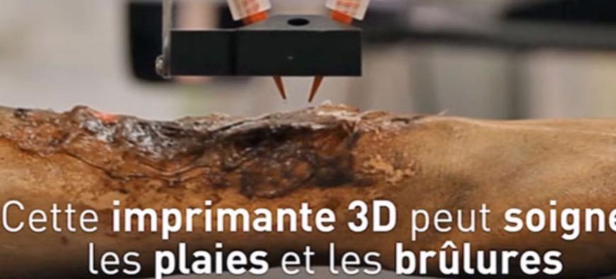 Une imprimante 3D portable cicatrise les plaies et les brûlures !